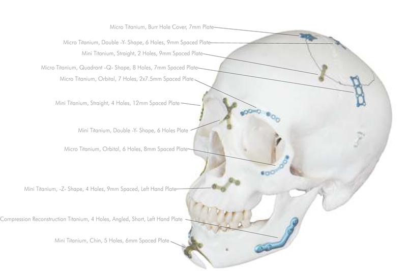 cranio maxillofacial 2